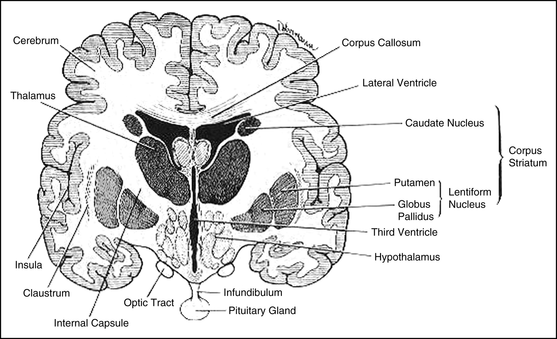 Story additionally Label likewise Cyh   healthtopics library brain as well Black And White Human Brain With Labelled Diagram furthermore Third Ventricle Brain Thalamus. on sagittal view of the brain diagram labeled